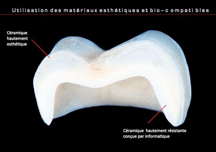 esth tique dentaire paris 17 au cabinet dentaire msi dentiste paris 17. Black Bedroom Furniture Sets. Home Design Ideas